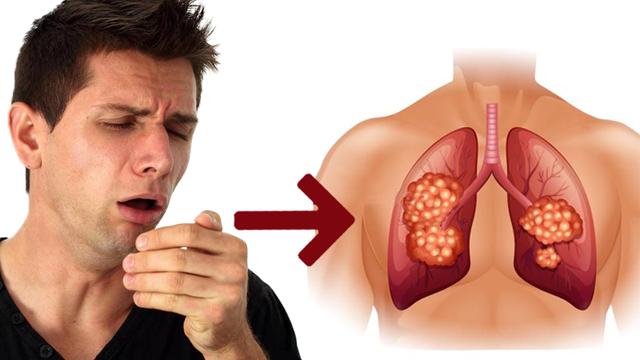 Cách nhận biết triệu chứng lâm sàng đối với vi rút SARS-CoV-2