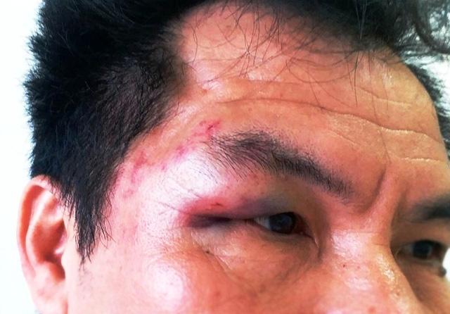 Vùng mặt của nhà báo Trần Cường bị thâm tím sau khi bị đánh. (Ảnh: NVCC).