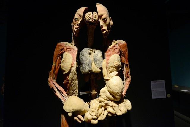 Những hình ảnh gây ám ảnh đối với người xem trong triển lãm Sự bí ẩn đặc biệt của cơ thể người.