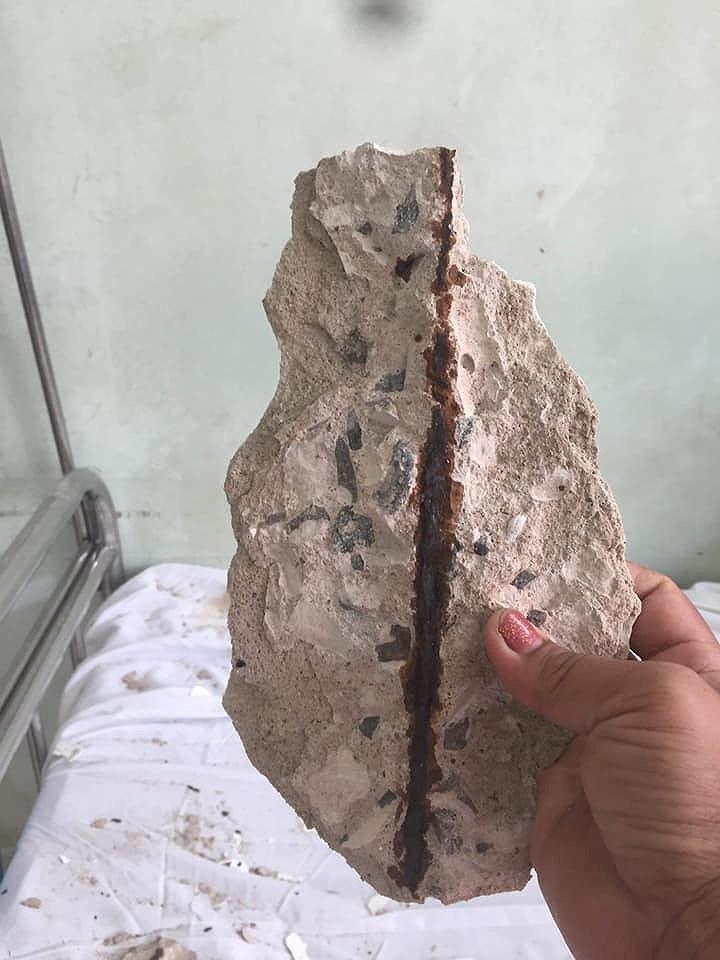 Bê tông rơi trúng giường bệnh nhân đang điều trị - ảnh 3
