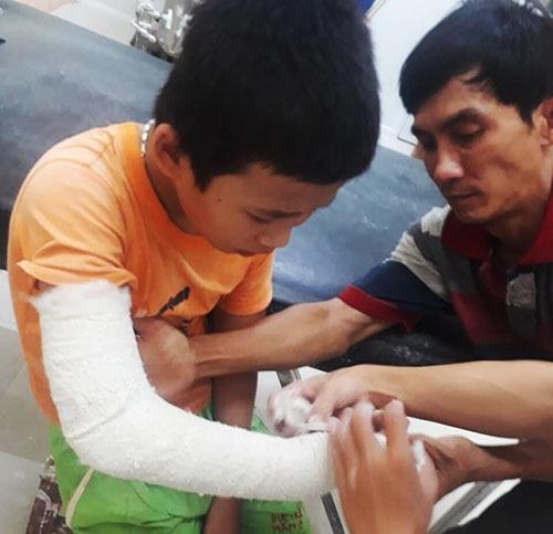 Nguyễn Văn Linhđang điều trị ở Khoa ngoại, Trung tâm y tế huyện Quế Sơn. Ảnh: Mạnh Thắng.