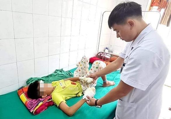 Bé trai 13 tuổi giập nát hai bàn tay vì pin phát nổ - Ảnh 1.