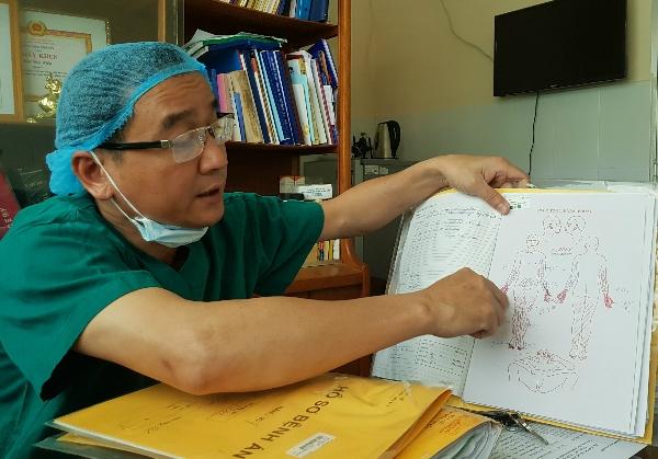 Bệnh nhân bị bỏng nặng vùng hai tay và hai chân. Ảnh: Lê Phương.
