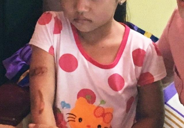 Các vết thương trên cánh tay của cháu T. được các thầy cô phát hiện vào 23/11/2017