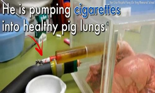 Điều gì xảy ra với phổi sau khi hút 60 điếu thuốc