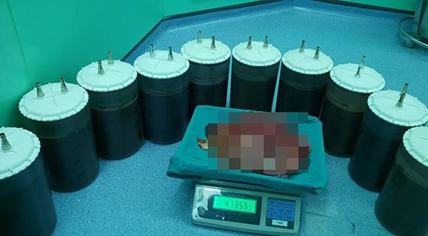 12 chai dịch (mỗi chai 4 lít) và vỏ bao khối u được lấy ra. Ảnh bệnh viện cung cấp.