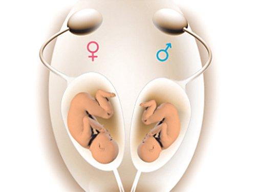 Chẩn đoán giới tính thai nhi bị phạt bao nhiêu?