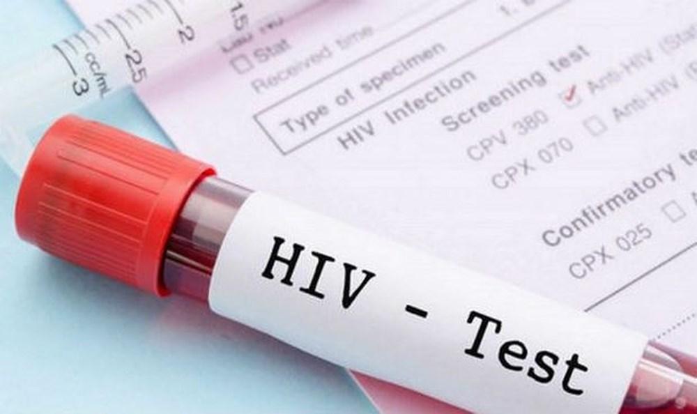Chi phí xét nghiệm HIV đối với người nhận mô, bộ phận cơ thể người và người nhận tinh trùng, noãn, phôi