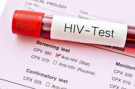 Trả kết quả khi xét nghiệm HIV tại các cơ sở y tế